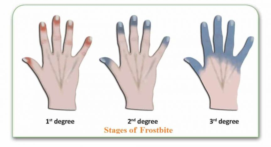 What is the best prevention for frostbite
